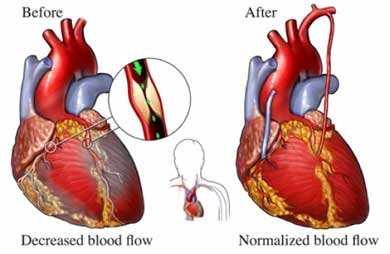 بالصور .. قسم جراحة القلب والصدر ينجح في إجراء 15 عملية قلب مفتوح للأطفال  بالمستشفي الجامعي بقنا